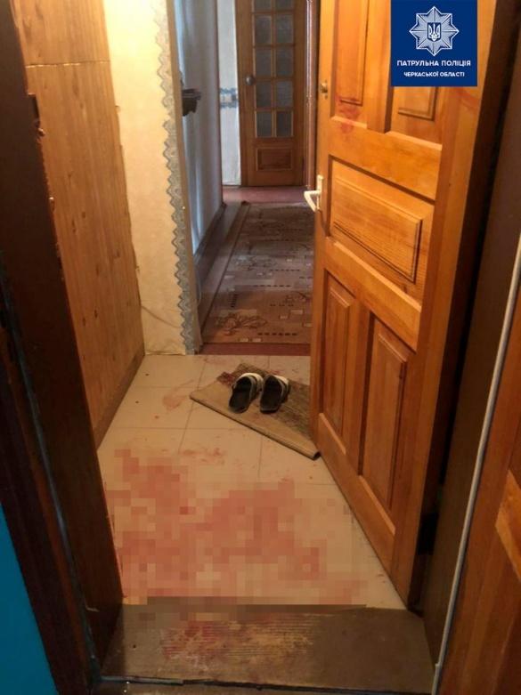 Біля ліфта в будинку Черкас знайшли закривавлену жінку (ФОТО)