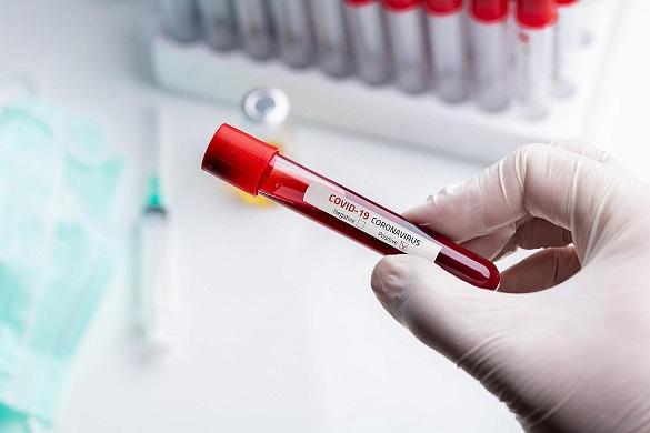 Понад півтори тисячі черкащан одужали від коронавірусного захворювання