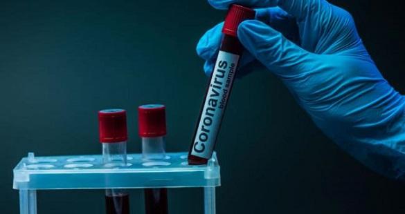 На Черкащині за останню добу зафіксували 141 новий випадок COVID-19
