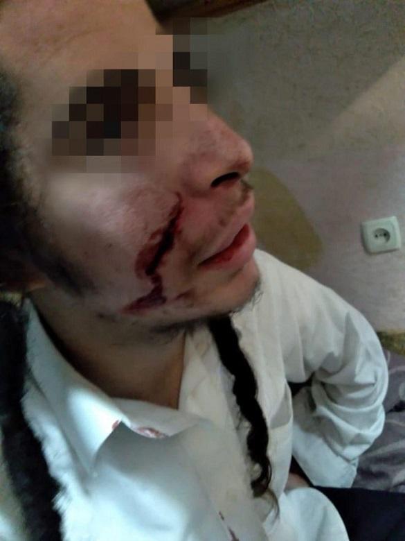 В Умані троє невідомих поранили ножем неповнолітнього хасида (ФОТО, ВІДЕО)
