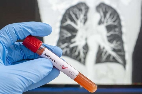 На Черкащині зафіксували понад 40 нових випадків COVID-19