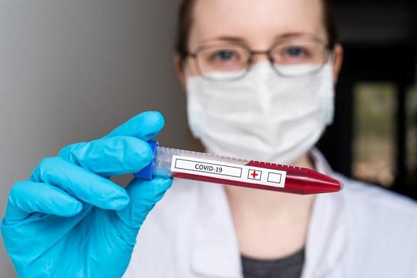 Ще 16 нових випадків захворюваності на COVID-19 зафіксували в Черкаській області