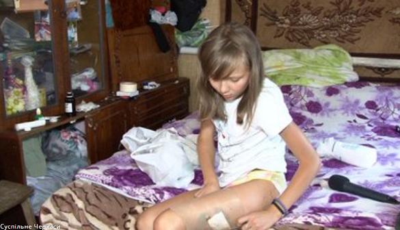 Рани та садна: неподалік Черкас дівчинку покусав сусідський алабай