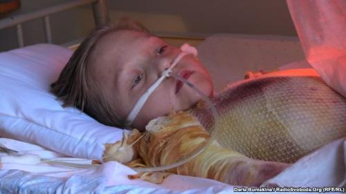 Постраждалий під час віялових відімкнень 10-річний черкащанин потребує ще кількох операцій