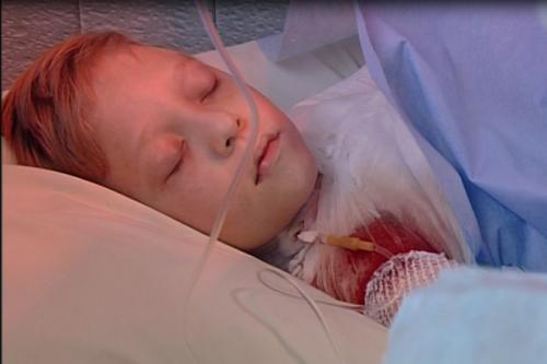 Черкаського школяра, який обгорів від свічки, нарешті випишуть додому