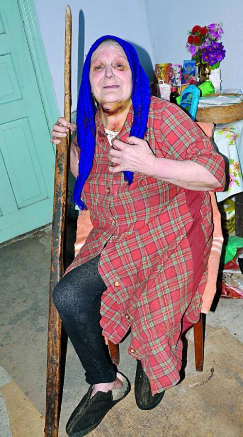 На Черкащині поранена 82-річна бабуся два дня кликала на допомогу