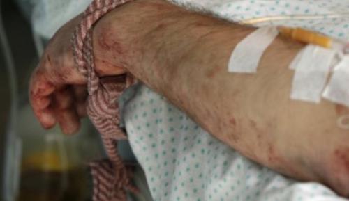 Черкаський боєць бореться за життя в госпіталі Дніпропетровська