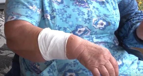 На Черкащині лікар залишив постраждалу без вакцини від сказу (ВІДЕО)