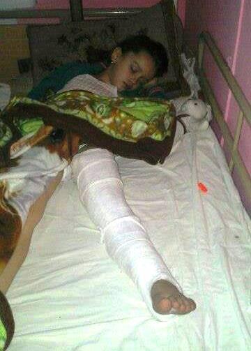 Дівчинка, яку збили на дорозі в Умані, потребує допомоги в лікуванні