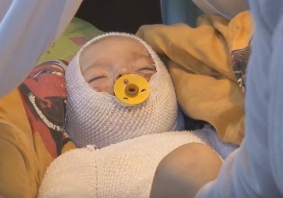 Черкаські лікарі врятували малюка з опіками (ВІДЕО)