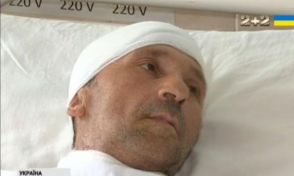 Важкопораненому черкаському військовому потрібна термінова допомога