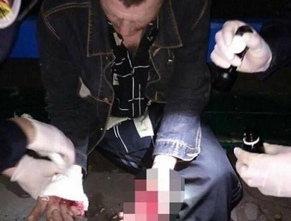 Черкаські полісмени затримали жінку, яка поранила ножем незнайомого їй чоловіка