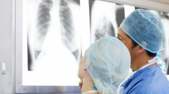 Стало відомо, де у Черкаській області найбільше людей хворіє на туберкульоз
