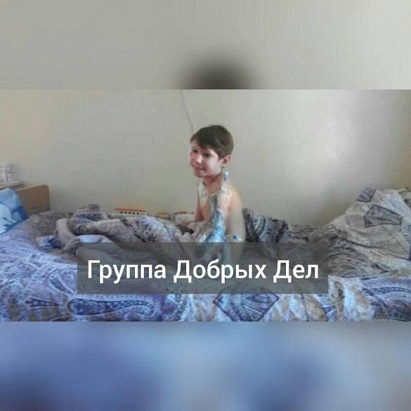 Маленький черкащанин, який пережив удар струмом у 10 тисяч вольт, йде на одужання