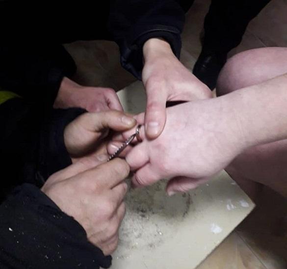 У Черкасах надзвичайники допомагали жінці зняти каблучку