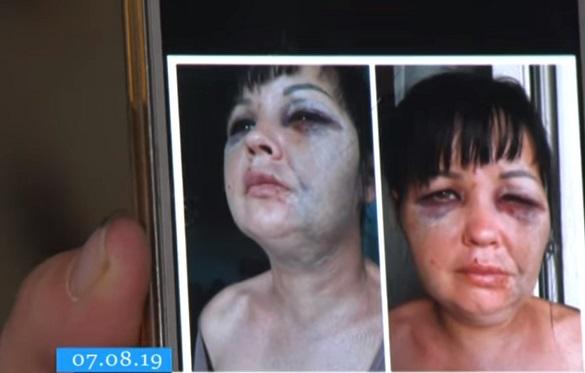 Домашній кат: у Черкасах чоловік три дні знущався над своєю співмешканкою (ВІДЕО)