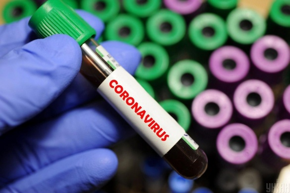 Голова Черкаської ОДА розповів про стан здоров'я хворих на коронавірус