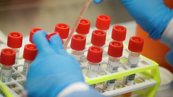 Вже працюють блок-пости: на Черкащині ще у пяти людей виявили коронавірус