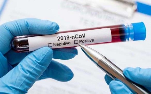 """""""Односельчани погрожували розправою, а лікарі поширювали чутки"""": студент із Черкас розповів про те, як хворів коронавірусом"""