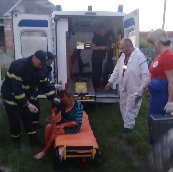57-річна жінка на Черкащині впала до 5-метрового льоху