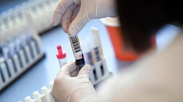 Сімнадцять випадків захворюваності на коронавірус зафіксували в Черкаській області